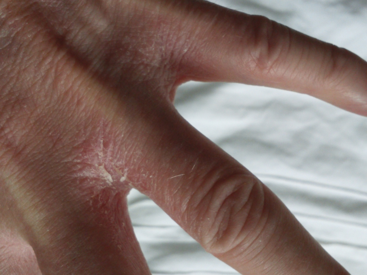 Eczema hand dry and cracking
