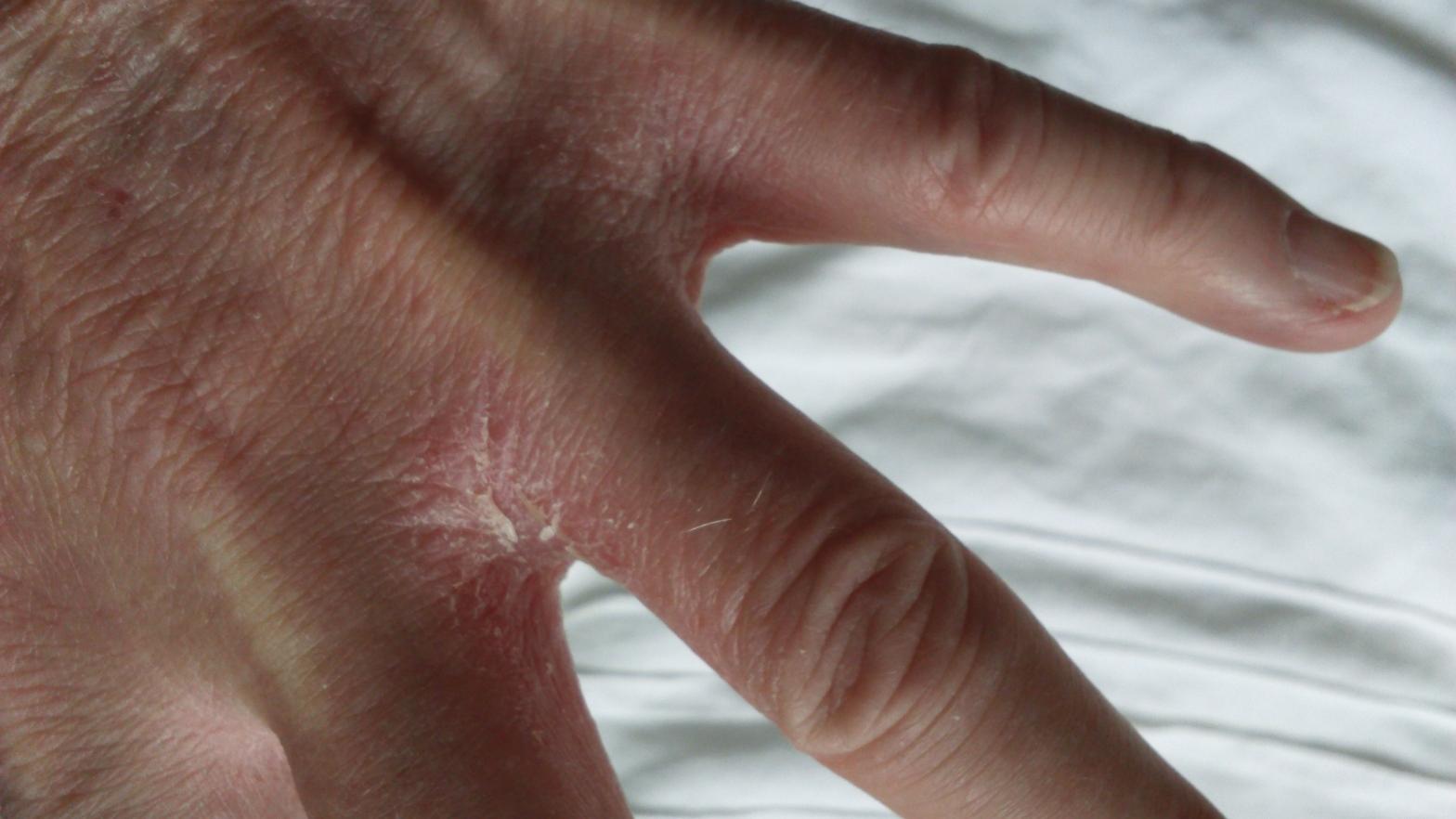 Eczema hand dry and cracking