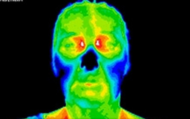 Medical Thermal Imaging scan before diagnosis and treatment